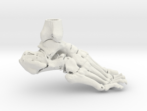 Foot and Ankle - Calcaneal Fracture (SKU 011) in White Strong & Flexible