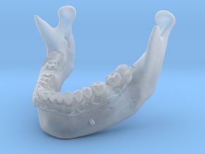 Subject 0.h | Mandible (After) in Smooth Fine Detail Plastic