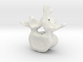 L3 lumbar vertebral body in White Natural Versatile Plastic