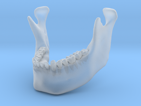 Subject 3a   Mandible (Before) in Frosted Ultra Detail