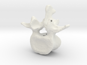 L3 lumbar vertebral body in White Natural Versatile Plastic