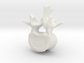 L2 lumbar vertebral body in White Natural Versatile Plastic