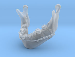 Subject 2i | Mandible + Distractors (After IMDO) in Smooth Fine Detail Plastic