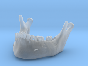 Subject 2o | Mandible (After IMDO) in Smooth Fine Detail Plastic