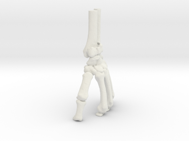 Wrist Model - Distal Radius Fracture (SKU 009) in White Natural Versatile Plastic