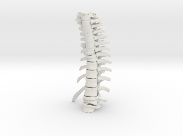Thoracic Spine - Fracture (SKU 019)