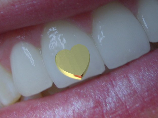 Tooth Art- Heart in 14K Yellow Gold