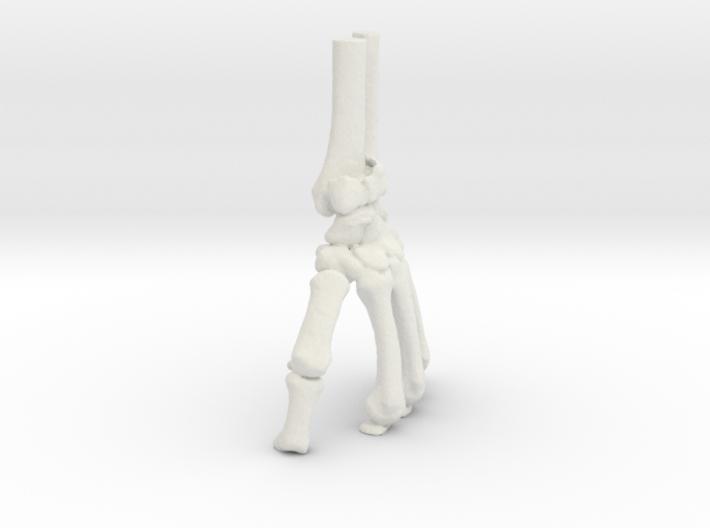 Wrist Model - Distal Radius Fracture (SKU 009) 3d printed