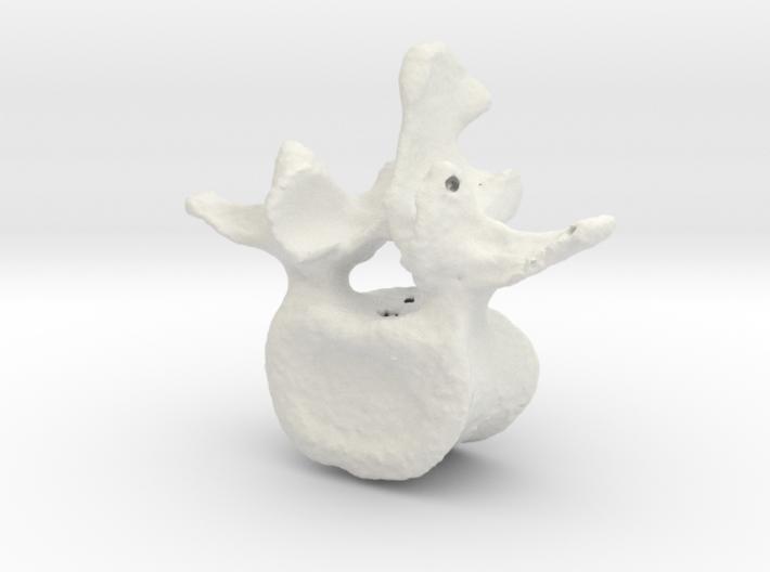 L3 Lumbar Vertebral Body Xvf28rhab By Drhughharvey