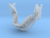 Subject 5b | Mandible + Teeth 3d printed