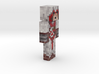 6cm | Braidoo 3d printed